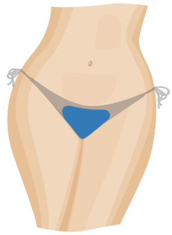 A diagram showing the areas of hair removed for a bikini wax