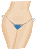 Front view of thong wax / extended bikini wax